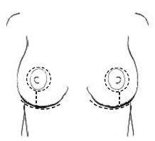 breast scarring