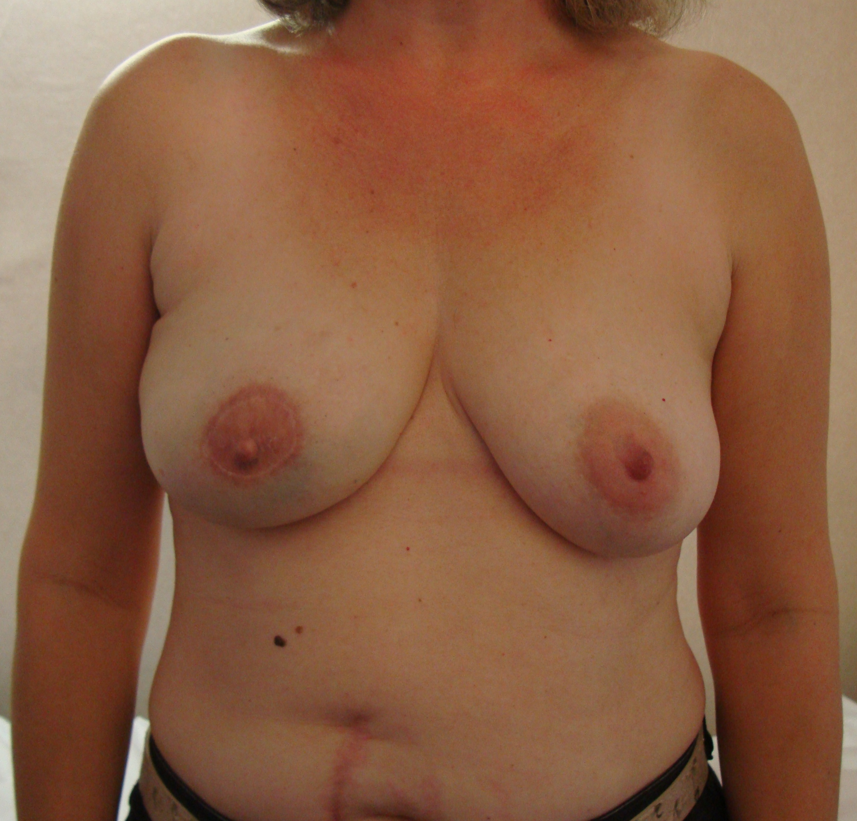 After breast reconstruction pictures
