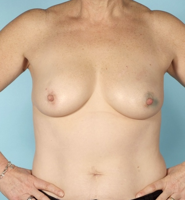Breast reconstruction surgery before pictures